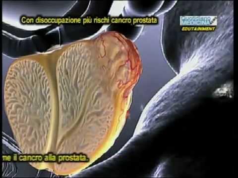 Sperma sangue dopo massaggio prostatico