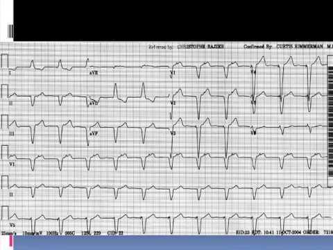 Hypertensive Krise Notfallversorgung Krankenschwestern Algorithmus