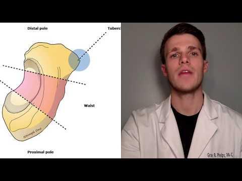 A vállízület veleszületett ízületi gyulladása