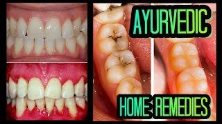 EASY Ayurvedic Remedies For Healthy Teeth & Gums