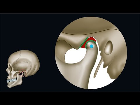 Drückender Schmerz im Auge mit Osteochondrose