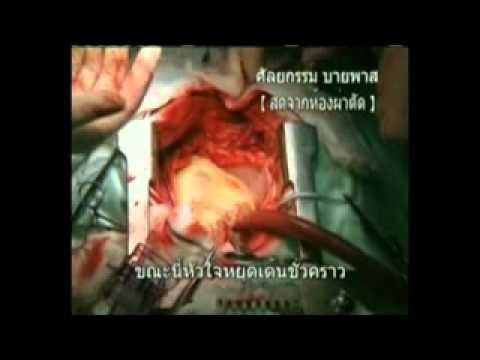การผ่าตัดเส้นเลือดขอด