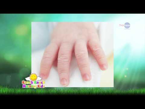 กระแทกบนเท้าของนิ้วหัวแม่เท้าที่เป็นโรค