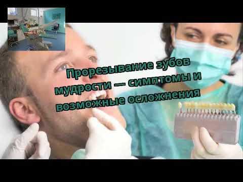 Прорезывание зубов мудрости — симптомы и возможные осложнения