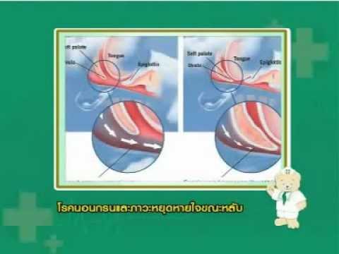 การรักษาโรคสะเก็ดเงินสำหรับ likopid