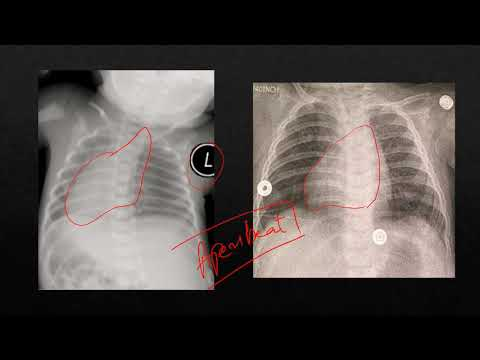 Radiology Findings on Pre-op X-ray in Esophageal Atresia with Tracheoesophageal Fistula