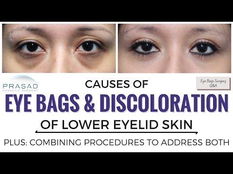 Ehersisyo ng facial wrinkles sa paligid ng mga mata