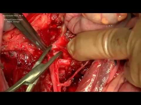Surgery for Malignant Schwannoma