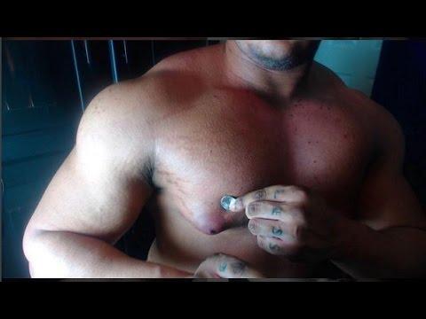 Bolyat les muscles à la région du cou