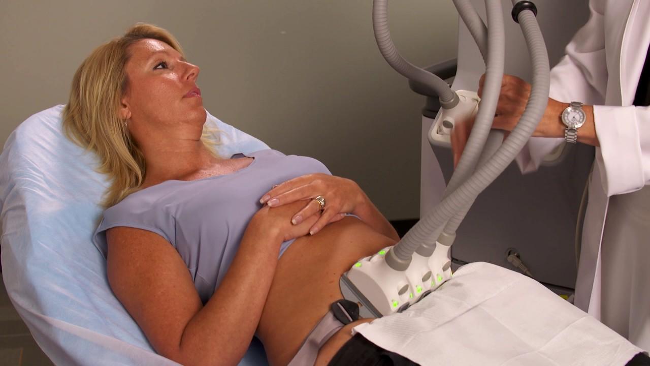 Woman recieving SculpSure treatment