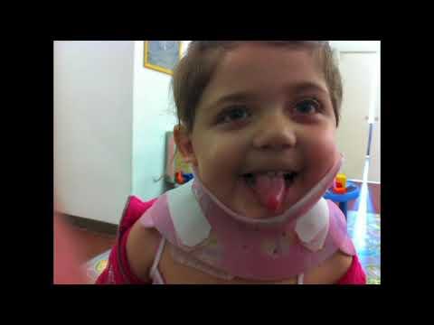 In Minsk un convitto per pazienti con scoliosis