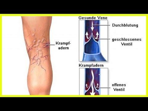 Die Operation auf die Varikose auf den Hoden