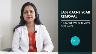 How To Get Rid Of Acne Scars With Pixel Laser Resurfacing Treatment?