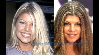 Fergie Plastic Surgery Before and After HD