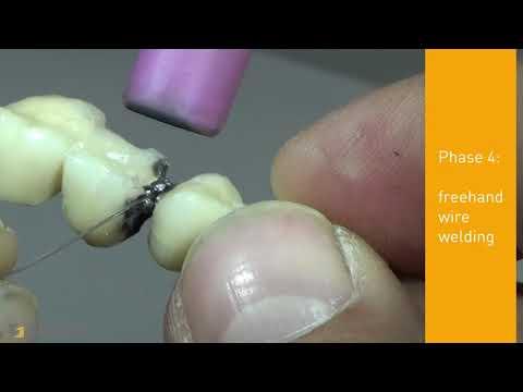 Dental laser welding in 6 easy steps: SISMA LM-D