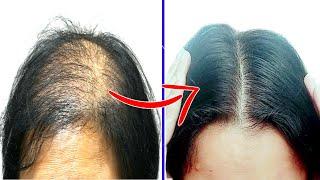 How to Stop Hair Loss -  Grow New Hair Naturally | Cure Baldness | Priya Malik