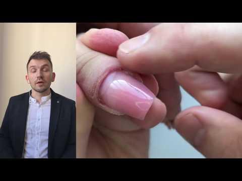 Dermatite di atopic durante secoli a bambini