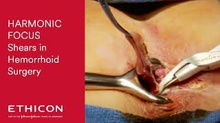 Hemorrhoidectomy with HARMONIC FOCUS® Curved Shears