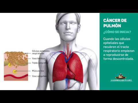 Cáncer pulmonar: un protagonista de muertes a nivel mundial
