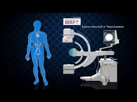 Код мкб дисплазия предстательной железы