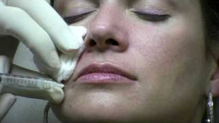 Juvederm Ultra Injection to NasoLabial Folds (laugh lines)