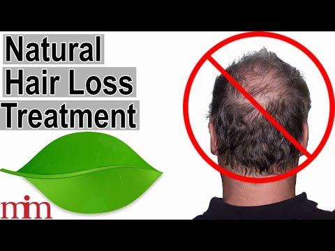 Sakit male pattern baldness