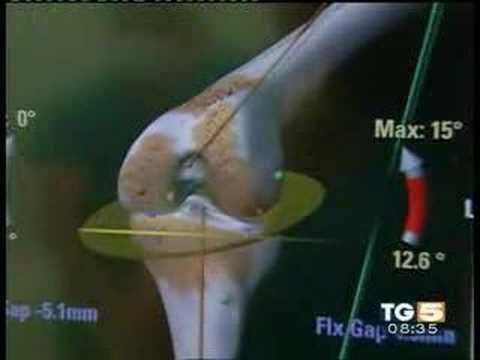 Cibo con losteoartrite e osteocondrosi