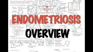 Ahoj New video on Endometriosis Endometriosis is defined as the presence of