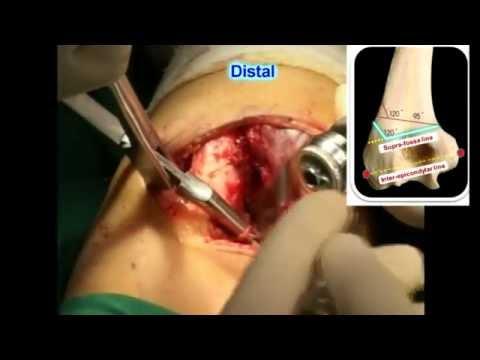ภาพถ่ายการผ่าตัด hallux valgus