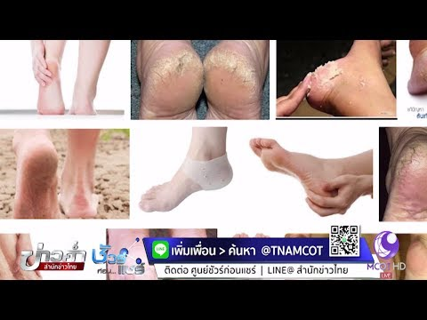 Hondrogard กับ thrombophlebitis