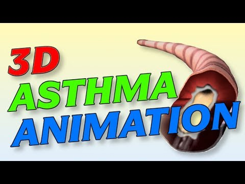 Video New 3D Asthma Medical Animation (Symptoms, Causes and Treatment)