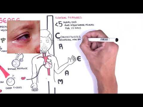 Choroba Kawasaki (zespół podobny do COVID-19)- objawy, patofizjologia