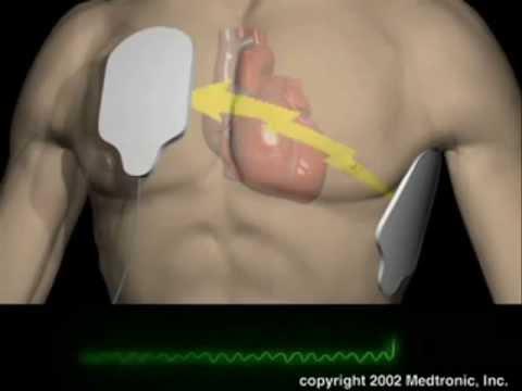 La pressione sanguigna più bassa come rimedi popolari