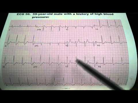 Diminution de lhypertension et la fréquence cardiaque