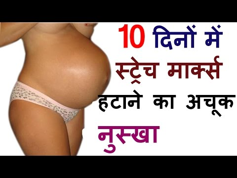 , title : 'Pregnancy Stretch Marks In Hindi Natural Remedies To Remove Stretch Marks After Delivery Fast'