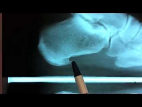 Video Heel Spur / Plantar Fasciitis Surgery - Houston Foot Surgeon - Dr Robert J Moore III