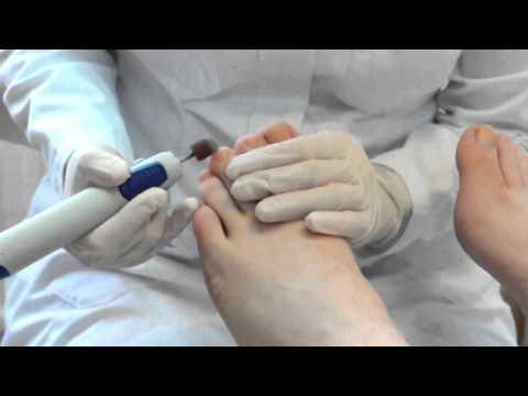 Гликемия натощак при сахарном диабете 2 типа