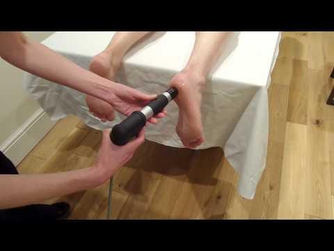 Video Proximal shockwave Plantar Fasciitis Treatment (bony heel spur) with Gymna Shockmaster 300