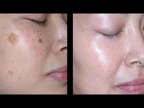 Wie du Flecken im Gesicht innerhalb kürzester Zeit los wirst!
