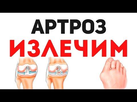 Die Ursache der Schmerzen in den Gelenken
