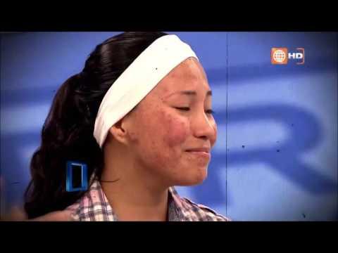 Antes y después de Tania, Tratamiento de Acné en Dr. TV