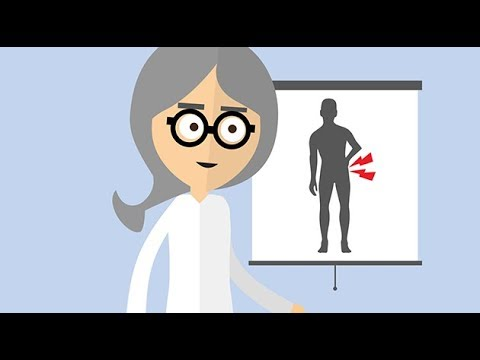 Rückenschmerzen und den unteren Rücken in der Parkinson-Krankheit