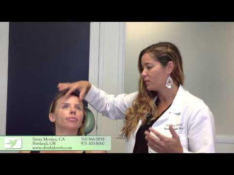Pagkatapos Botox ay maaaring pamamaga sa ilalim ng mata Litrato