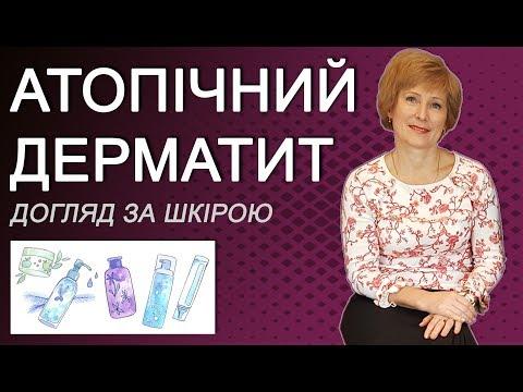 Атопічний дерматит у дітей, сучасні методи лікування та догляду за шкірою дитини