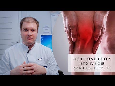 Что такое ОСТЕОАРТРОЗ? | Как его лечить? | Симптомы, Причины, Лечение