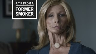 CDC: Tips From Former Smokers - Terrie's Voice Tip Ad
