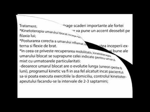 Recenzii slabe ale sistemelor de condroitină glucozamină