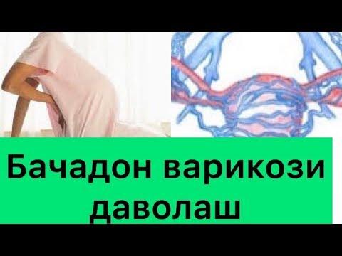Doxy hem cu recenzii varicose vene