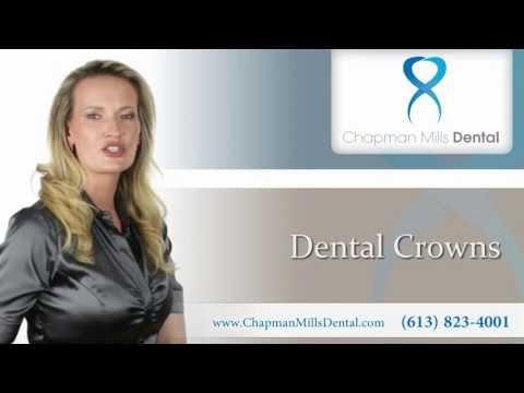 Dental Crowns - Ottawa Dental Clinic - Dentist in Ottawa, Ontario