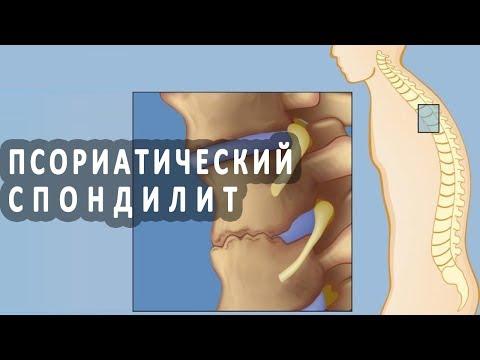 Что нужно знать о псориатическом спондилите